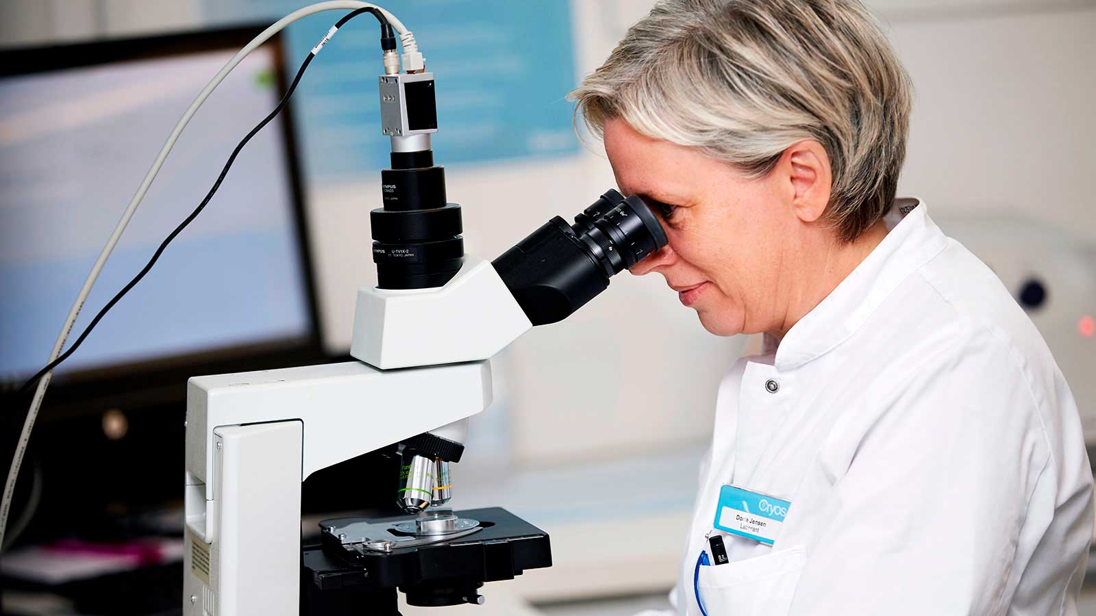 Laborant hos Cryos der vurderer kvaliteten af en sædprøve for en mand der gerne vil vide om han har god sædkvalitet