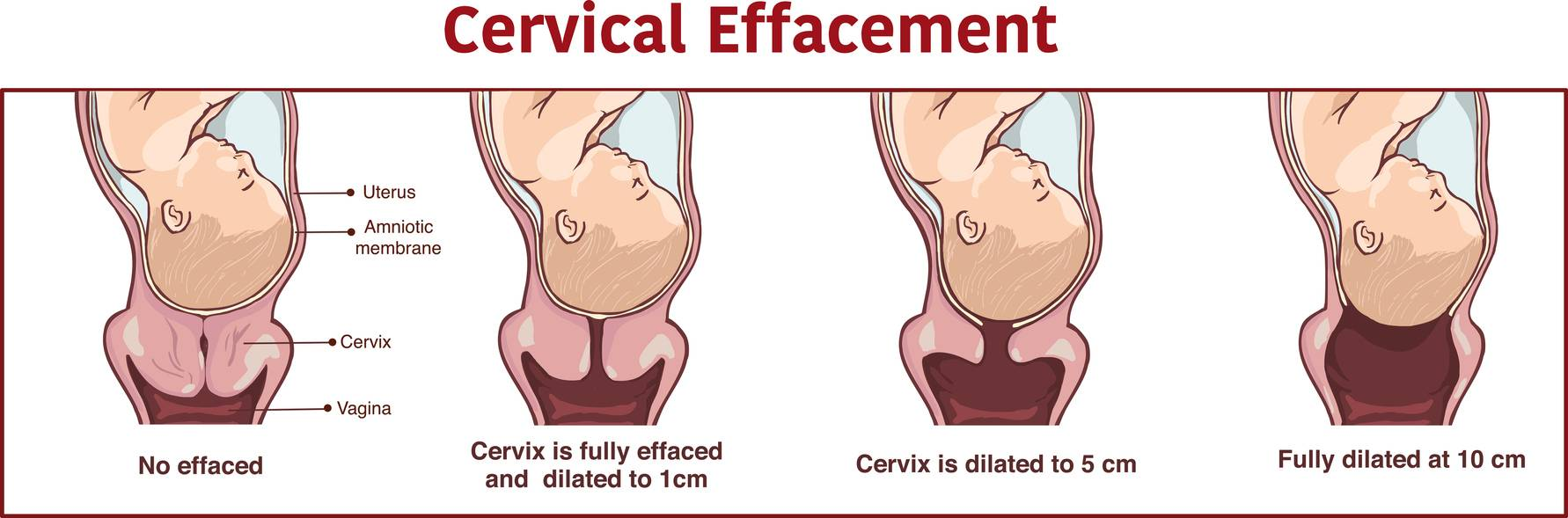 An illustration of the cervical effacement that happens during labour