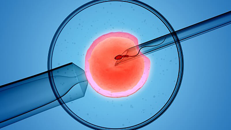 IVF is one of the most well known infertility treatment options