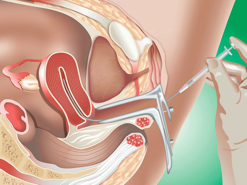 IUI - Intrauterine Insemination is another infertility treatment option