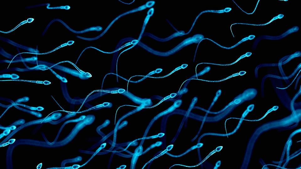 Grande plano das células de esperma de doador da Cryos para tratamento de fertilidade